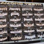 Oro y diamantes en los dientes